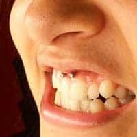 Imagens de piercings no smile