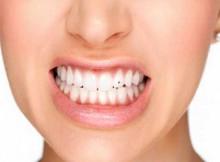 Piercing no Dente